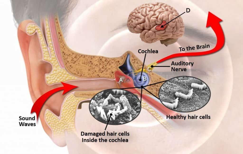 Tinnitus Diagram