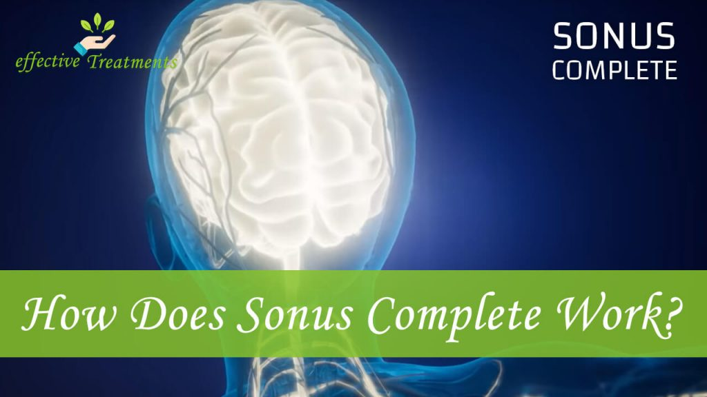 How does sonus complete work?