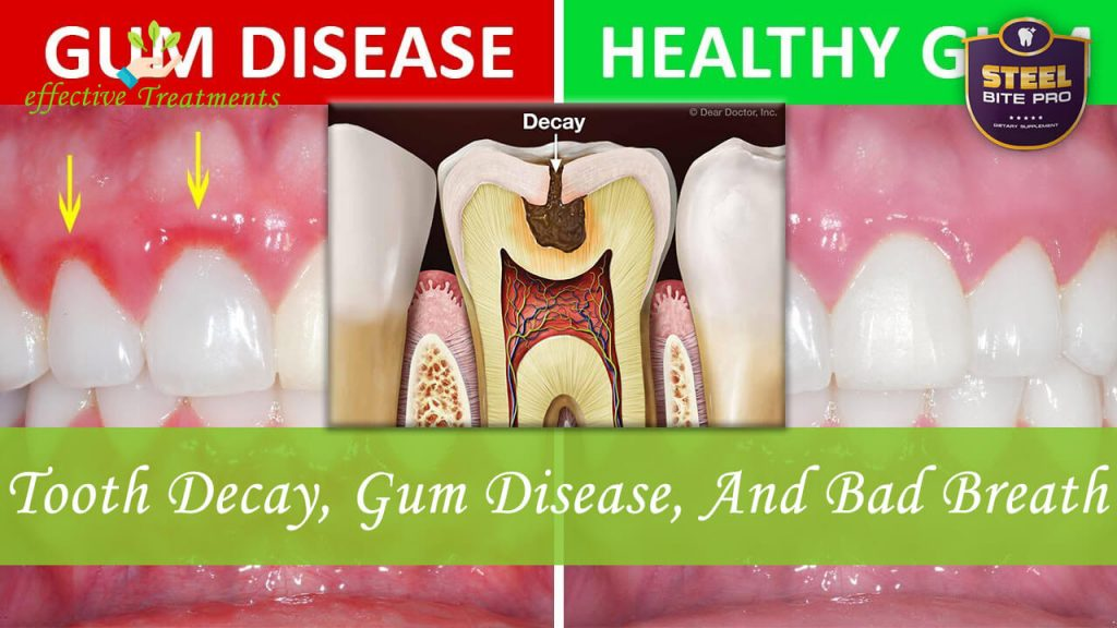 Tooth Decay, Gum Disease, and Bad Breath