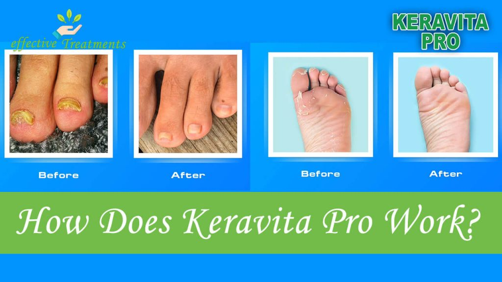 How does Keravita Pro work?