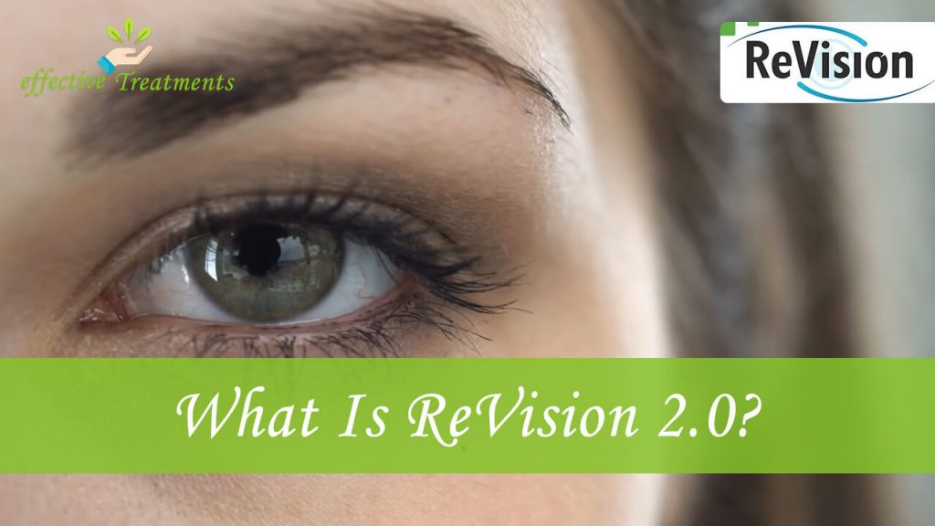 What is revision20.us supplement?