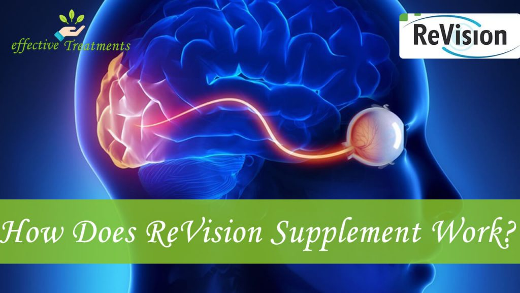 How does revision supplement work?
