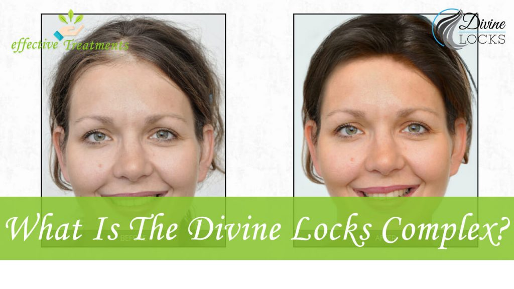 What is the divine locks complex?